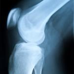 arthrosemittel