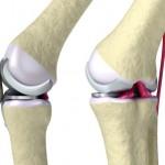 Knie Arthrose