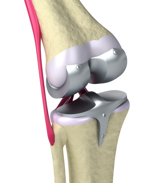 kniegelenk arthrose operation